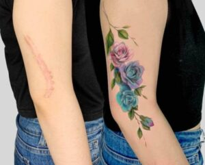 Can You Tattoo Over Scars